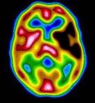brain-scan2